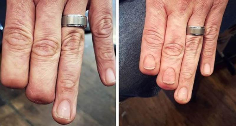 Πως με τη δύναμη του τατουάζ ένας άνθρωπος απέκτησε και πάλι τα δάχτυλά του